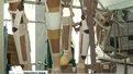 У Львові встановили протез ноги солдатові, скаліченому у зоні АТО