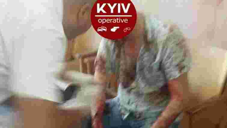 У київському ЖЕКу на Подолі розстріляли чоловіка і викрали в нього ₴200 тис.