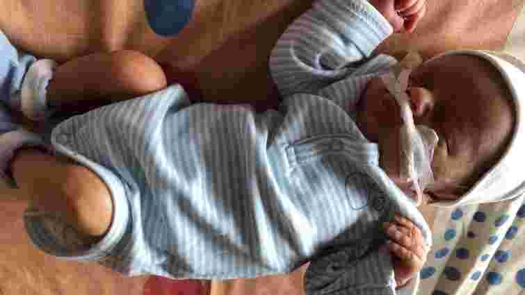 Львівські хірурги успішно видалили одноденному немовляті гігантську пухлину вагою майже 2,5 кг