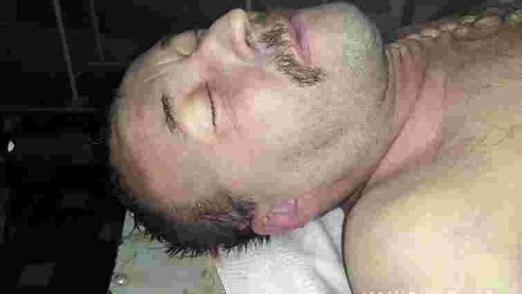На сходах багатоповерхівки у Рівному знайшли труп невідомого чоловіка