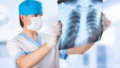 У Львові минулого тижня від пневмонії померло четверо хворих