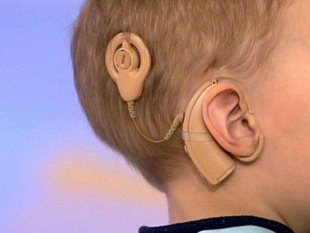 Электрические слуховые