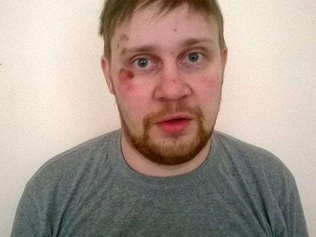 В Україні викрали і побили російського журналіста