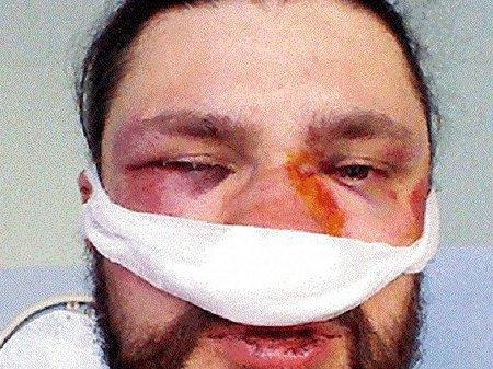 У сутичках в Києві вже постраждало більше 20 журналістів, – ІМІ