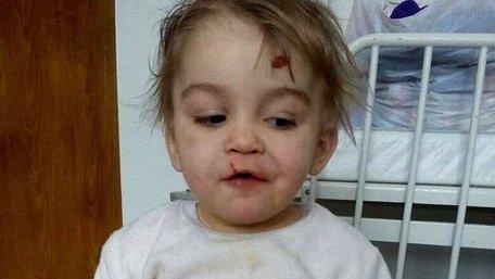 Після побоїв матері на Львівщині госпіталізували 4-річну дівчинку