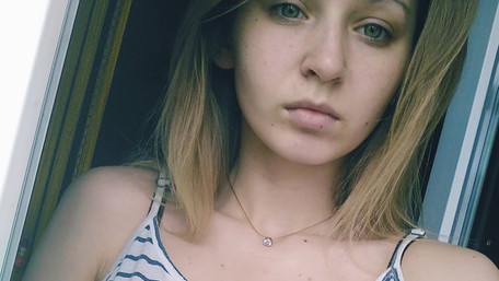 У лікарні померла 21-річна львів'янка, яку тиждень тому на переході збила машина