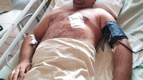 Під час затримання втікачів з колонії на Львівщині ножем поранили поліцейського