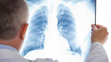 У львівській школі №78 виявили вчительку з відкритою формою туберкульозу