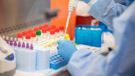 Коронавірус виявили у 55-річної львів'янки та 31-річного мешканця Рави Руської