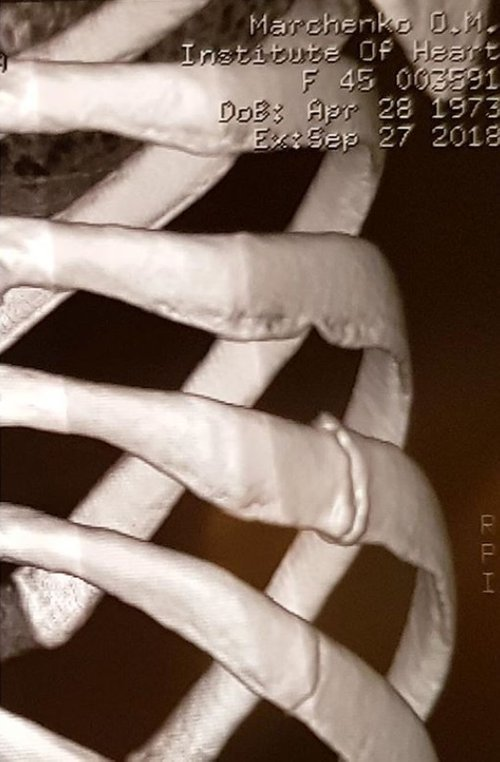 Марченко оприлюднила медичний знімок своїх пошкоджених ребер