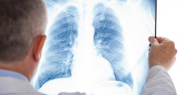 У  львівській школі №78 виявили вчительку з відкритою формою туберкульозу. Лікарі терміново обстежили усіх учнів, які контактували з хворою освітянкою