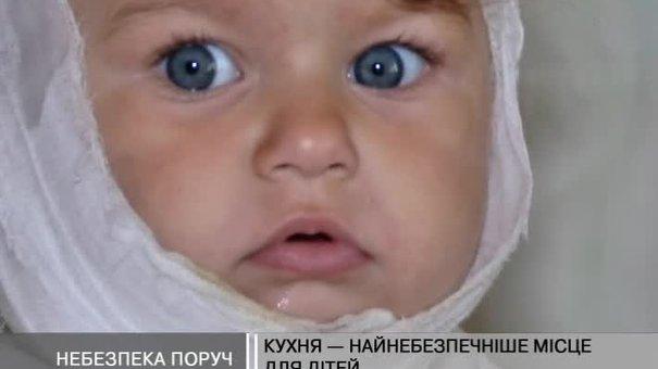 Опіки - друга за поширенням дитяча травма