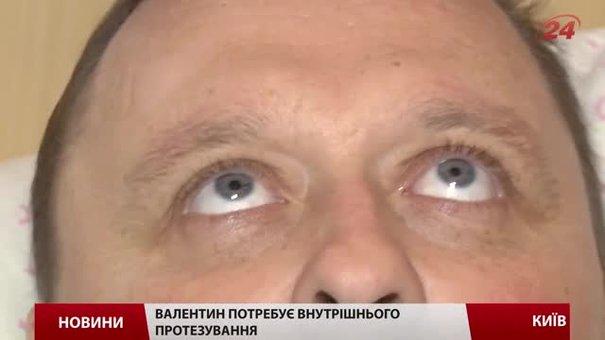 Доброволець Валентин Бородін потребує протезування
