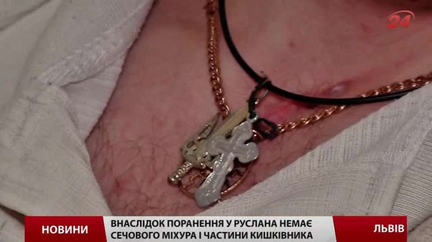 Пораненому бійцеві із Львівщини терміново потрібні кошти на оперцію закордоном