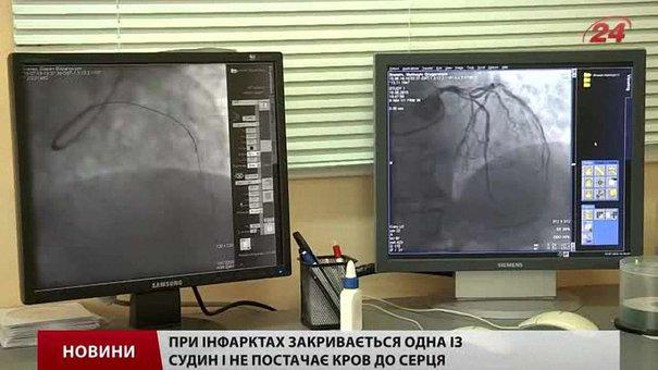 Інфаркти та інсульти молодшають, — лікарі