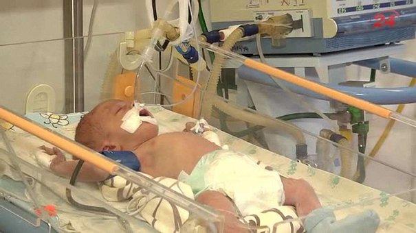 Львівська дитяча клінічна лікарня отримала кардіологічне обладнання