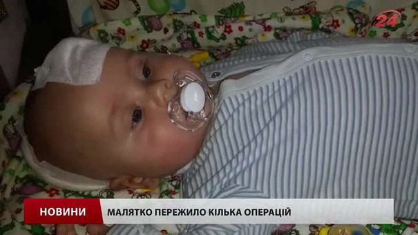 У Львові на виставці «Весна текстури» збирають кошти для чотиримісячного малюка