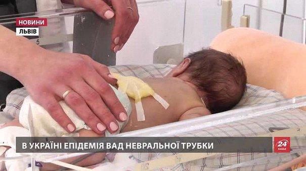В Україні епідемія вроджених вад розвитку, які викликають важкі каліцтва у немовлят