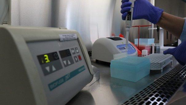 Лабораторія Львівської лікарні швидкої медичної допомоги почала проводити ПЛР-аналізи