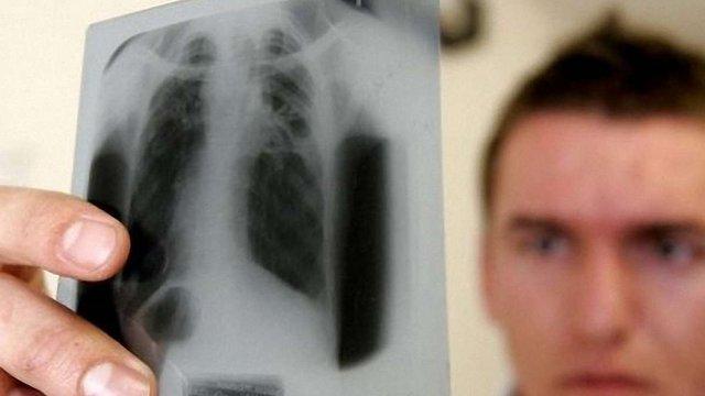 У США винайшли ліки, які за 2 тижні позбавляють туберкульозу