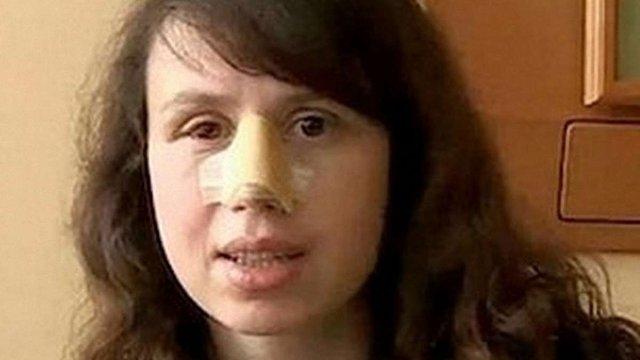 Тетяну Чорновол виписали з лікарні