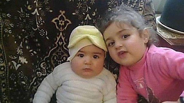 У Вірменії помер поранений російським солдатом 6-місячний малюк