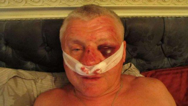 У Запоріжжі викрали і побили керівника місцевого «Правого сектора»