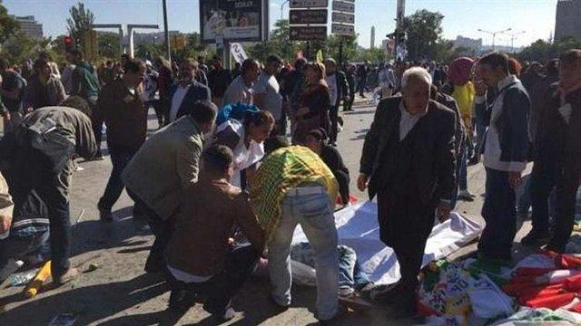 Теракт у столиці Туреччини забрав життя 86 людей