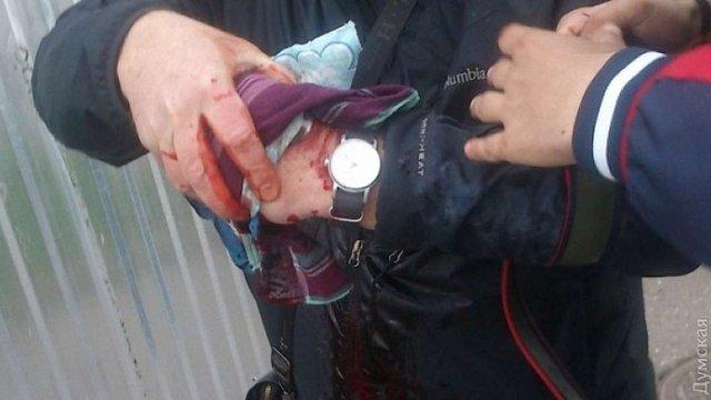 В Одесі на жалобному мітингу стався вибух, є поранений