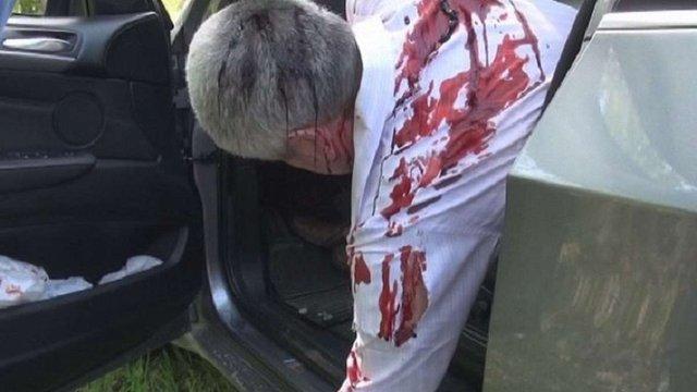 У Запоріжжі поліція інсценувала вбивство бізнесмена, щоб викрити замовника