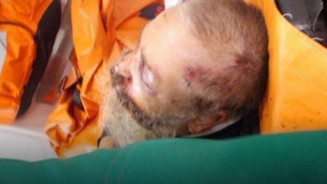 У Житомирі поліція затримала зловмисників, які жорстоко побили рабина
