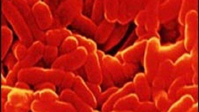 В Україні зафіксували зростання захворюваності на туберкульоз