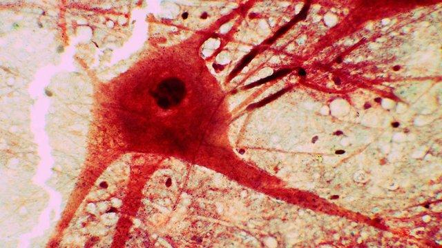 Вчені виявили в мозку нейрони, які формують сприйняття реальності та уявного