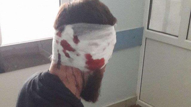 У Харкові побили 34-річного депутата облради від «Самопомочі»