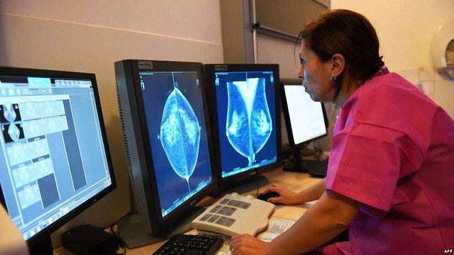 Щорічно в Україні реєструється понад 130 тис. випадків онкологічних захворювань