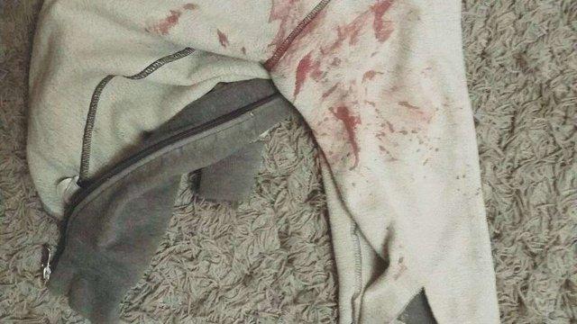 Вночі під час конфлікту у львівському хостелі іноземець ножем поранив 40-річного чоловіка