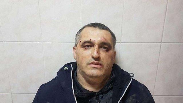 У Чернівцях невідомі побили активіста руху «Стоп корупції»