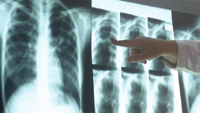 МОЗ запровадить альтернативні методи для ранньої діагностики туберкульозу