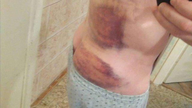 Через скандал із побиттям затриманого у львівській поліції почали службове розслідування