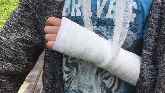 8-річний львів'янин зламав руку у переповненій маршрутці