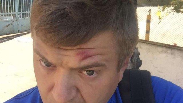 У Херсоні невідомі зловмисники напали на журналіста