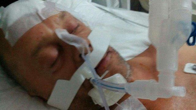 П'яний росіянин жорстко побив українця у турецькому готелі через виліт Росії з ЧС-2018