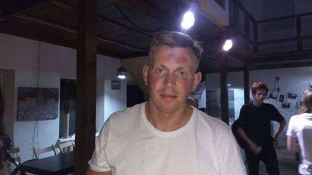 В Маріуполі невідомі в балаклавах напали на відвідувачів мистецької акції