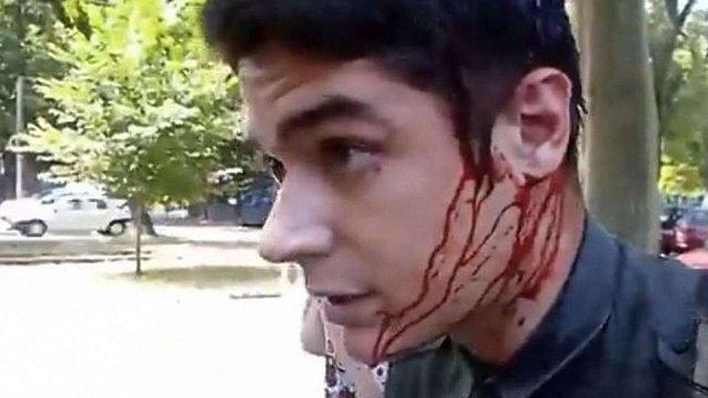 Поліція затримала двох підозрюваних у нападі на лідера одеського «Автомайдану»