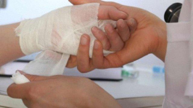 На Сколівщині під час розпалювання печі 31-річна жінка отримала опіки 20% тіла
