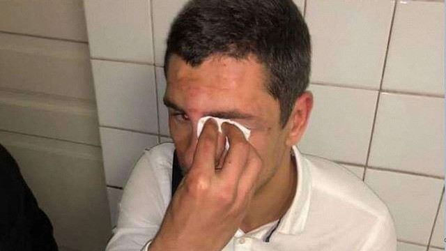У Києві побили голову молодіжного осередку «Радикальної партії»