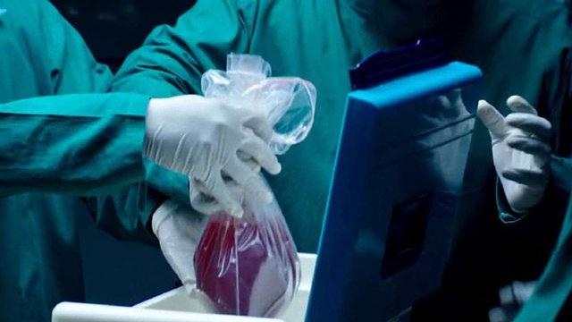 В Україні офіційно з'явилася професія трансплант-координатора