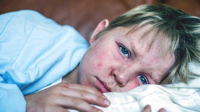 Україна стала світовим лідером за захворюваністю на кір