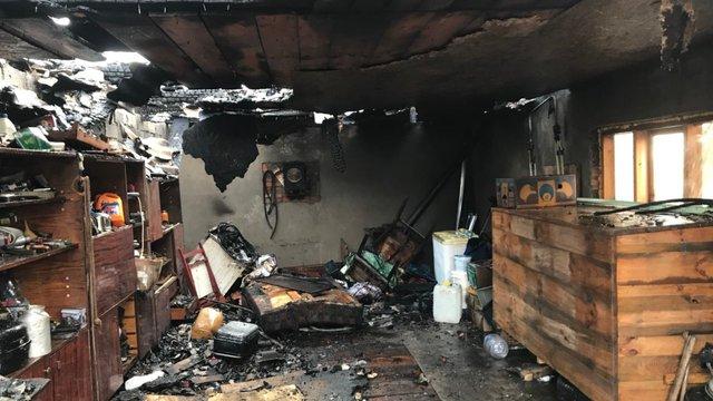 Львівські лікарі вдруге прооперували 4-річного хлопчика, що обгорів під час пожежі на Жовківщині