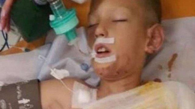 У Дніпрі діти облили бензином і підпалили 8-річного хлопчика, він у реанімації